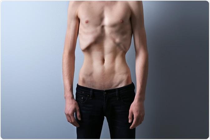 Los síntomas de la Anorexia Nerviosa