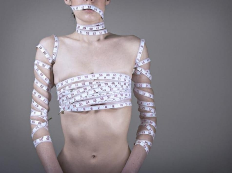 ¿Cómo se trata la anorexia?